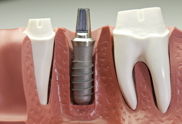 A model of dental implants. One implant is halfway done.