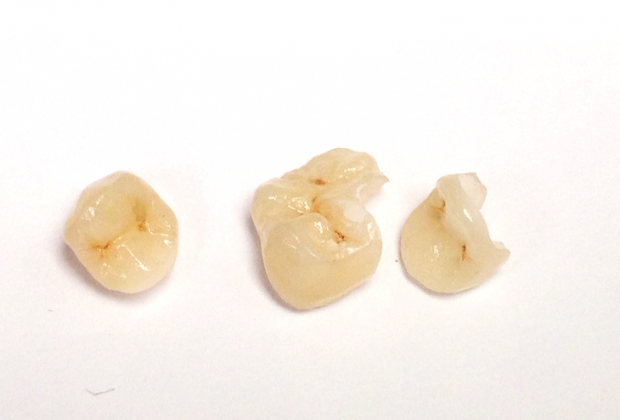A set of broken teeth that can be restore with a dental onlay or dental crown.