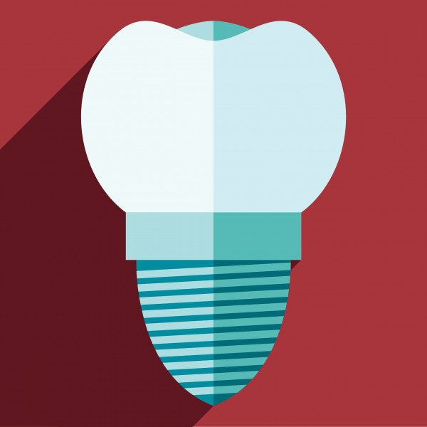 A graphic illustration of a dental implant.