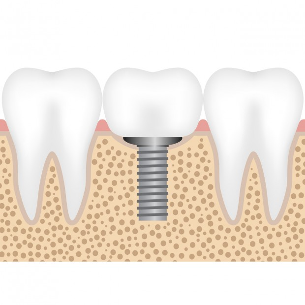 A graphic illustration, showing a dental implant with a crown.