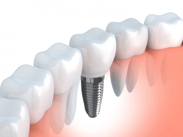 A 3D image of a dental implant. Some dental implants fail late.