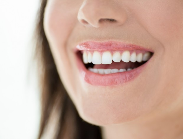 A woman smiling and showing off her teeth after going through the remineralization procedure.