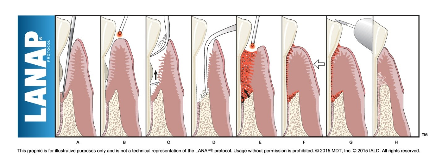 What Is Lanap Protocol Preserve Your Teeth