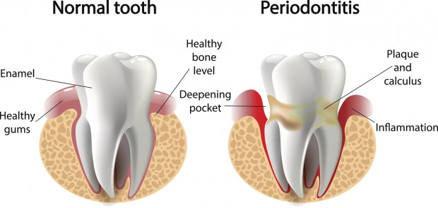 Surface caries.Deep caries Pulpitis Periodontitis.