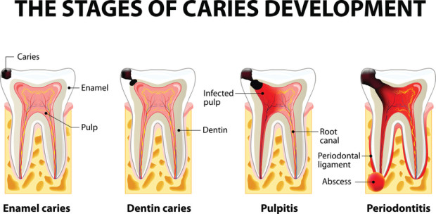 The stages of periodontitis, which dentist are trying to cure.