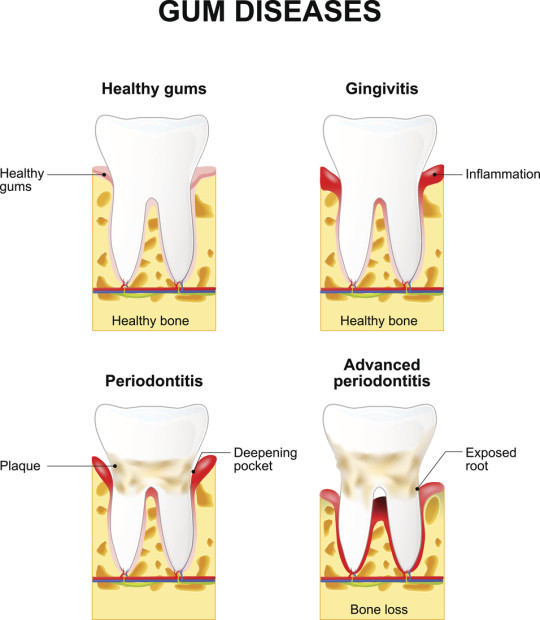 Gingivitis and Periodontitis