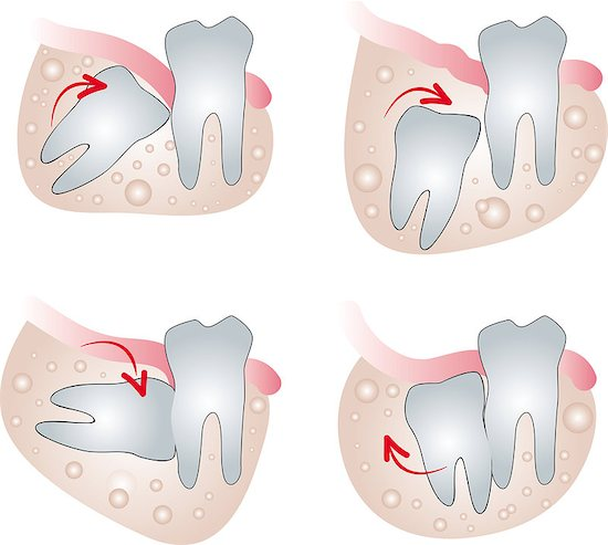 There are various ways in which wisdom teeth can become impacted.