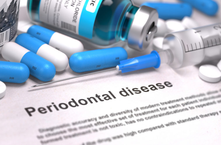 Periodontitis; periodontal disease; harmful bacteria