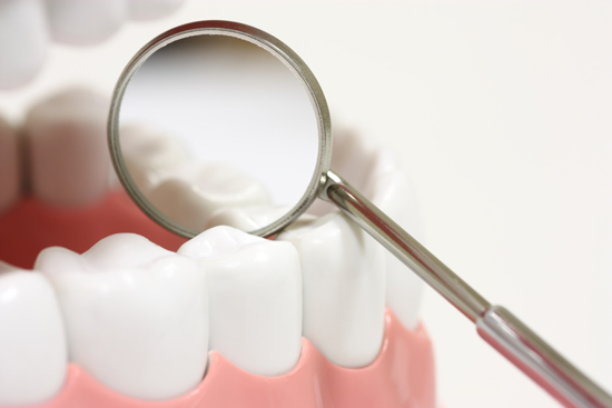 A clean set of teeth are examined after a successful laser treatment.